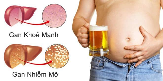 Ăn gì để giảm sạch sành xanh mỡ trong gan?