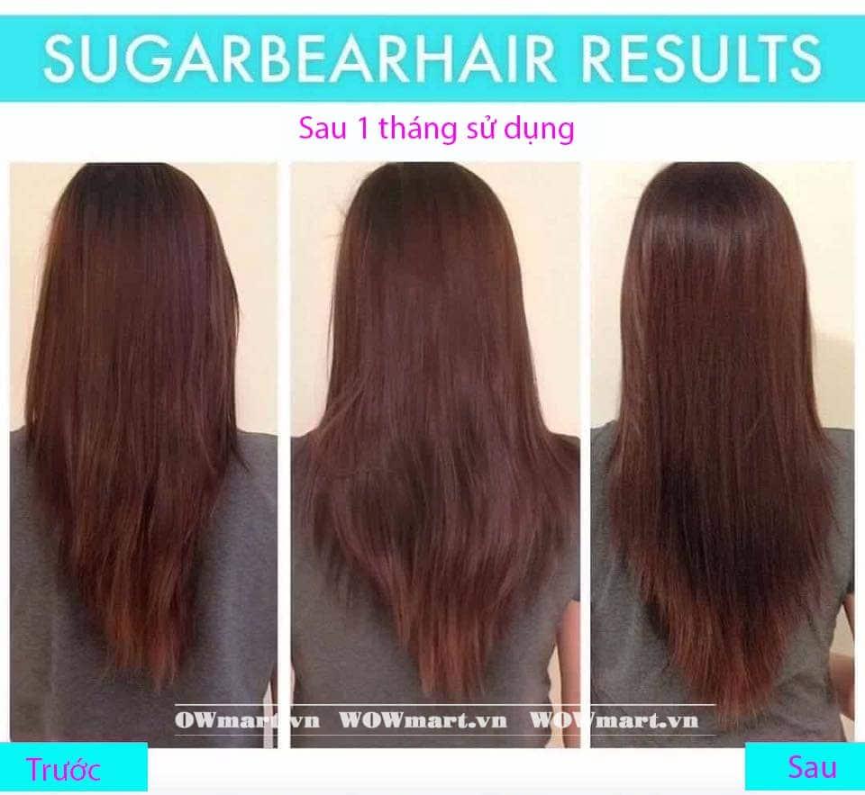 Công dụng của kẹo dẻo Hair vitamin SugarBearHair sau khi sử dụng