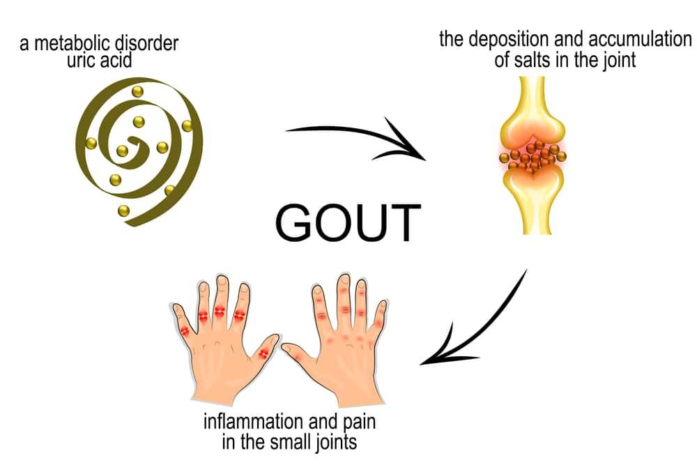 Thuốc điều trị bệnh Gút cho người đau nặng Gout Clear 60 viên
