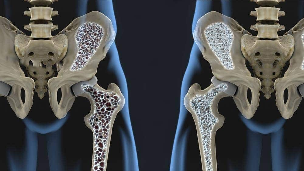 osteoporosis ss