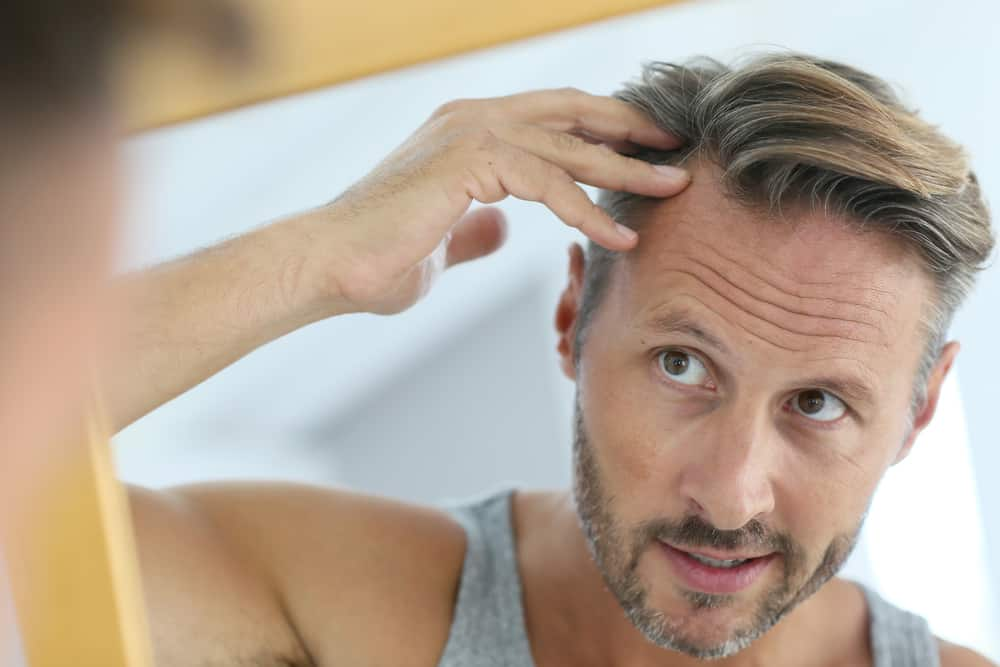 middle aged man concerned by hair loss