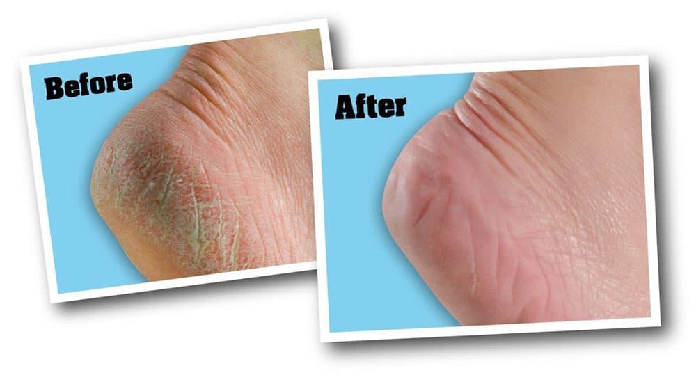 Kem trị nứt gót chân O'Keeffe's Healthy Feet Cream 91g