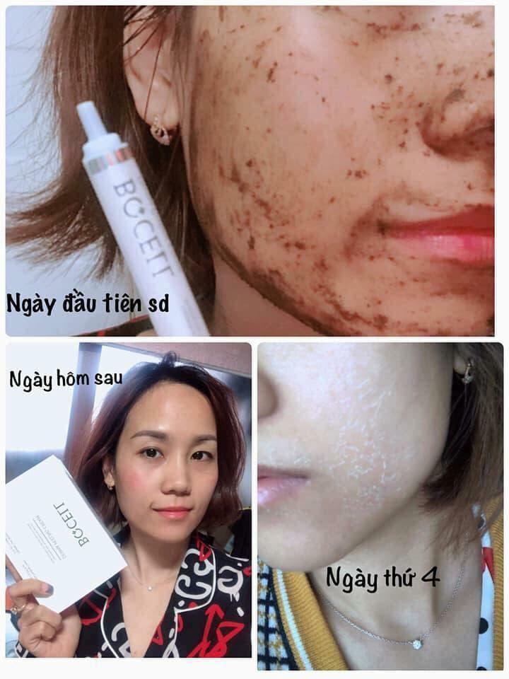 Thay da sinh học BQCell Peeling Derma Cream Hàn Quốc