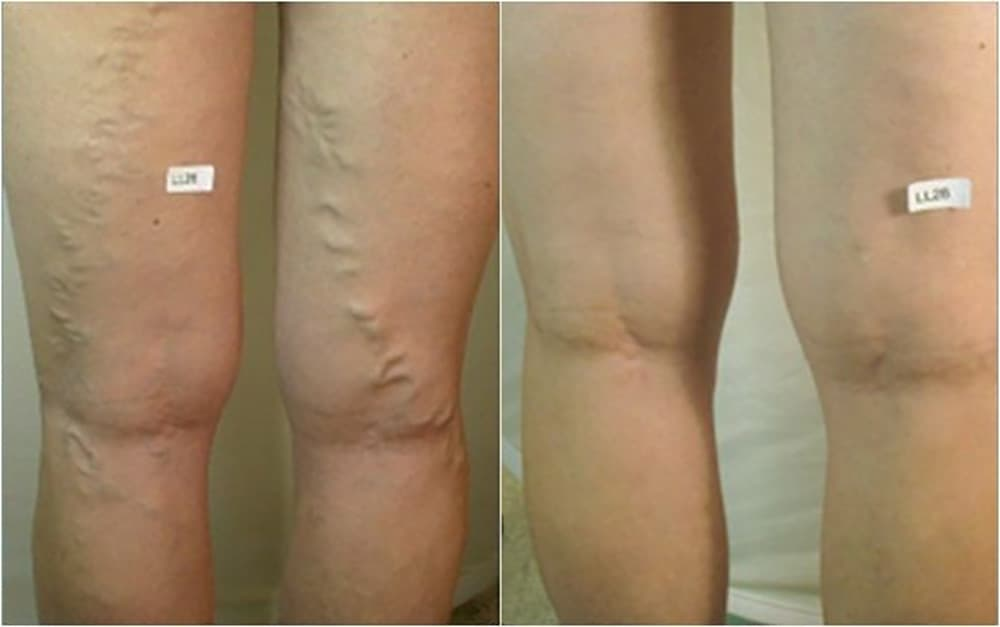 VARIKOSETTE CREAM FOR LEGS SPECIAL REVITALIZING COMPLEX 75ml