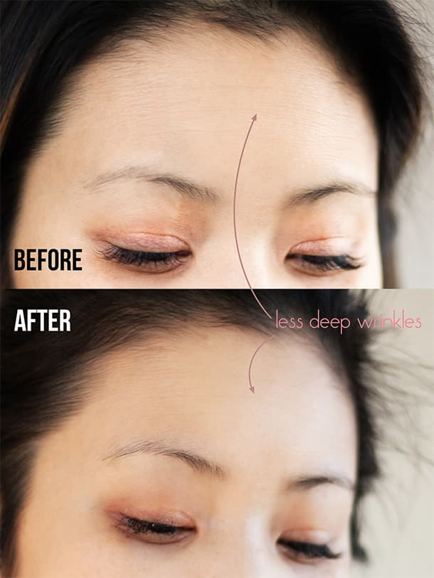 Kem phục hồi nếp nhăn Neutrogena Rapid Wrinkle Repair® Regenerating Cream 48g