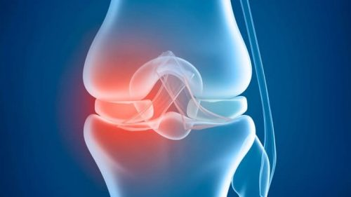 joint pain connection health